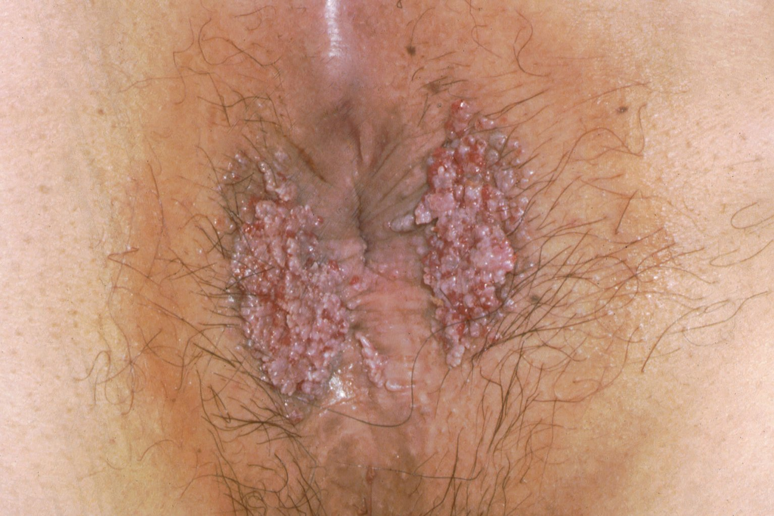 cut-fuck-can-you-get-genital-warts-without-sex