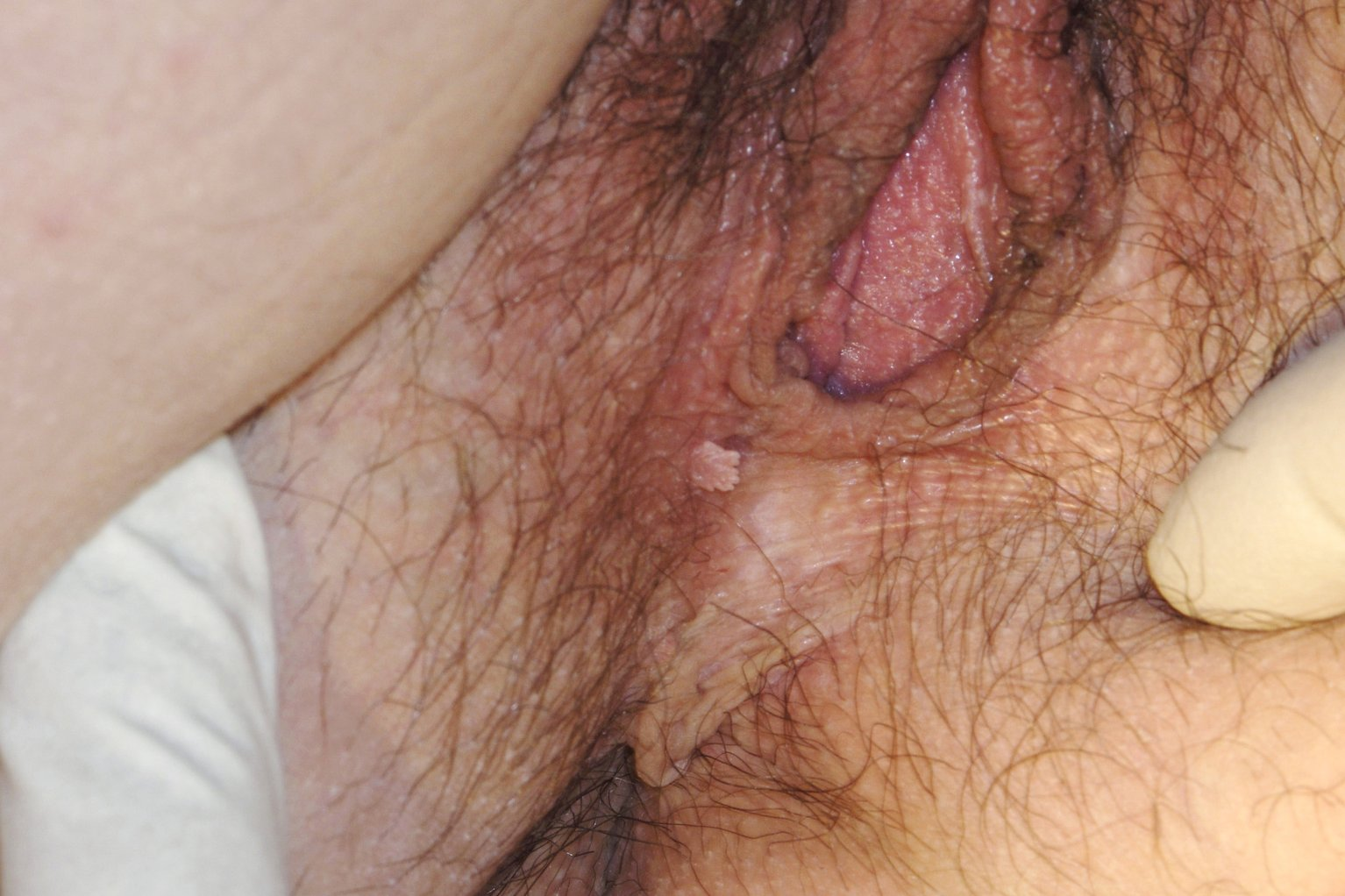 sex-with-internal-vaginal-warts-lovers