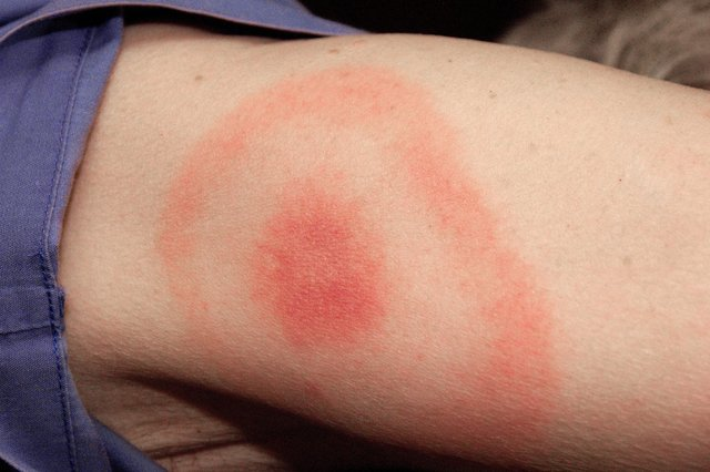 A classic bull's-eye Lyme disease rash on an arm.