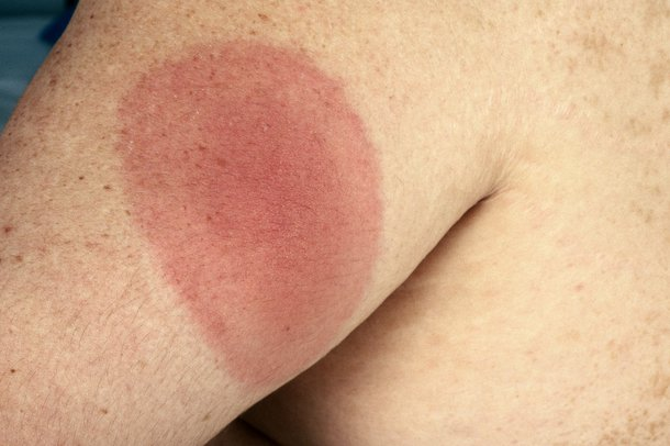 A red, circular Lyme disease rash on an arm