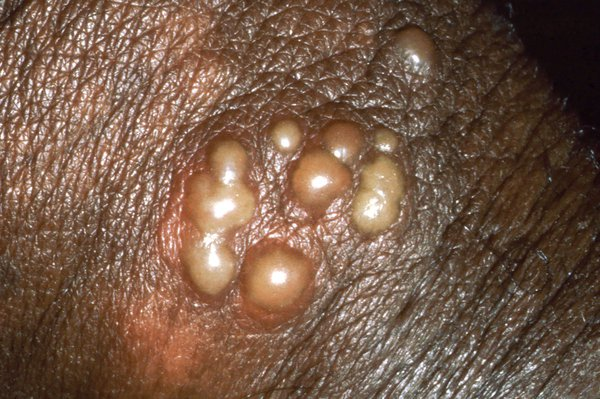 Herpes blisters on the skin of a penis