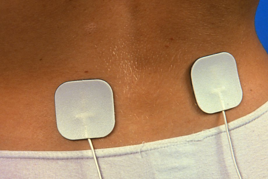 Picture of TENS machine electrodes on skin