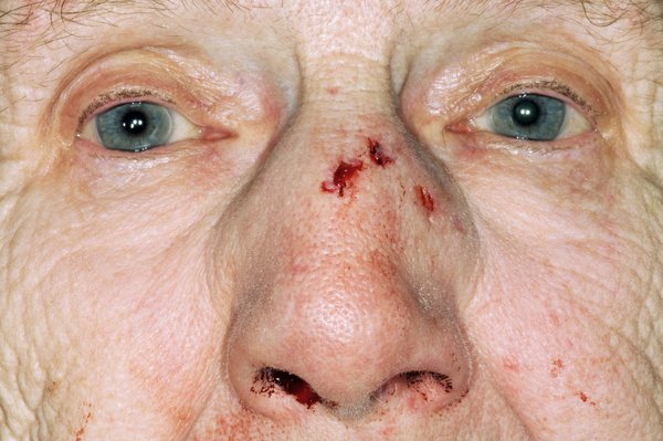 An elderly lady with a cut on her nose and a nosebleed
