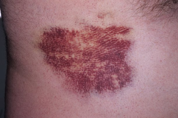 Picture of a rib injury