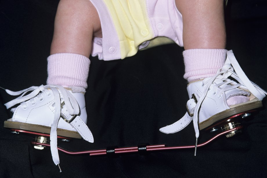 corrective surgery for clubfoot in adults