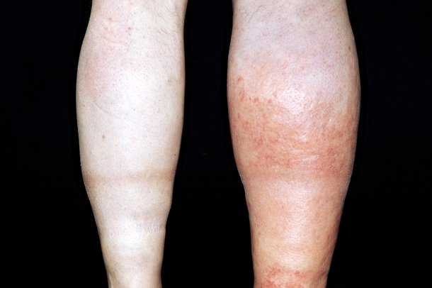 Back of the left and right legs. The calf of the right leg shows signs of DVT - it's swollen and red.
