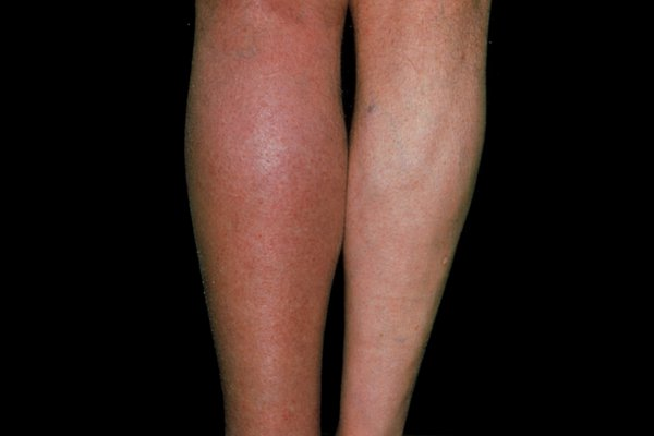 Picture of blood clot in left leg