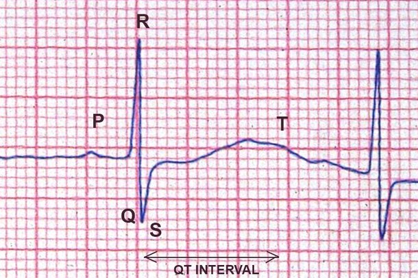 Picture of long QT syndrome on an ECG
