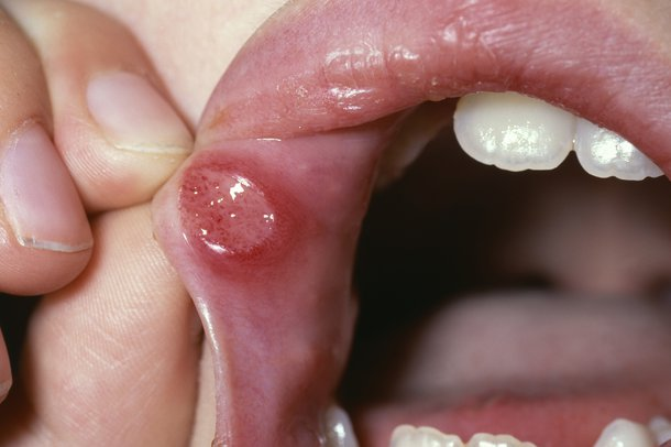 Picture of a mouth ulcer