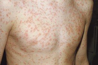 Rubella (german measles) - NHS