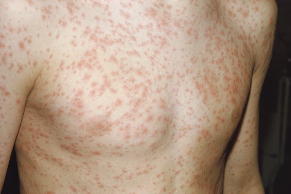 The rash starts behind the ears and spreads to the head, neck and body