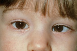 so depressed - is it a lazy eye? - BabyCenter