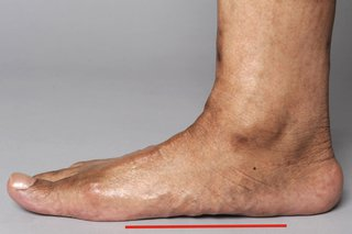 A man's right foot placed flat on the ground. There is no gap between the foot and the ground.