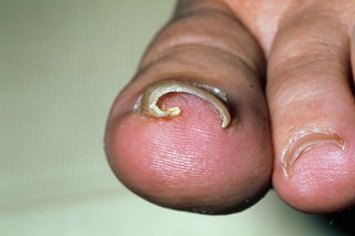 Ingrown toenail - NHS