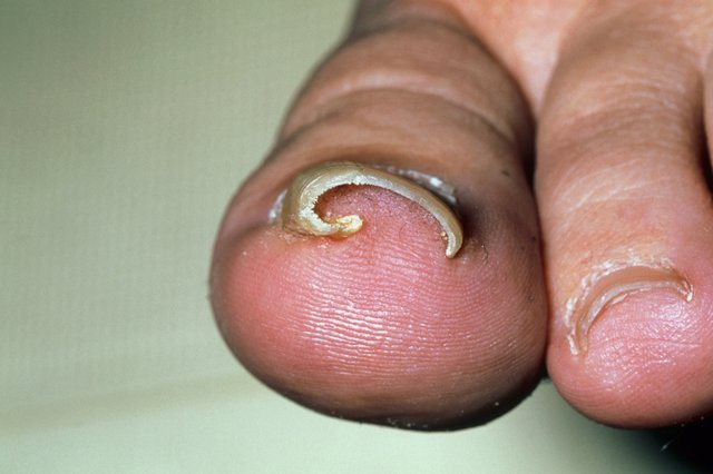 S_0918_ingrown_toenail_M3500218.jpg