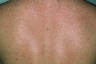A spotty rash on the back of someone with dark skin