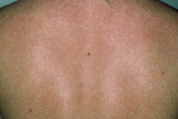 The rash can be hard to see on dark skin, but might feel rough or bumpier