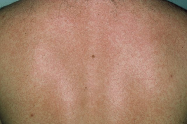 S_0918_rubella_rash_on_white_skin_M2100115.jpg