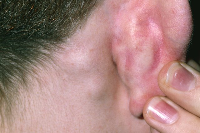 2 small lumps under the skin behind someone's right ear
