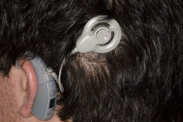 Picture of auditory brainstem implant