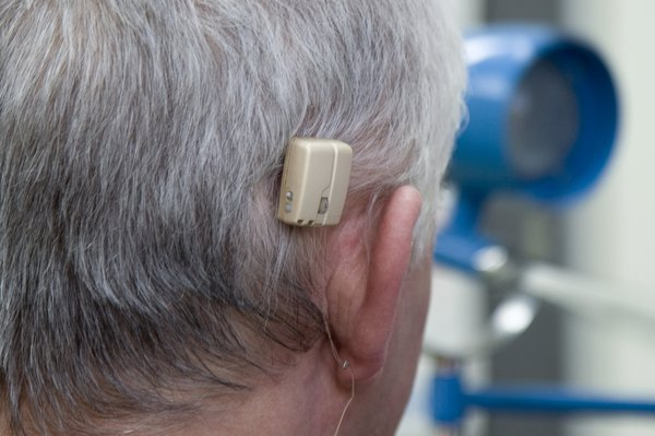 Picture of bone anchored hearing aid