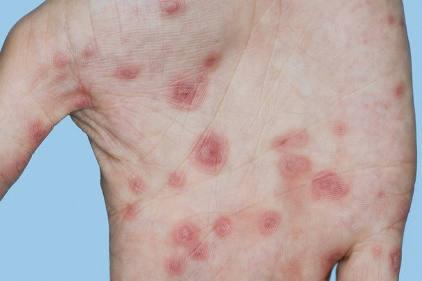Picture of erythema multiforme rash