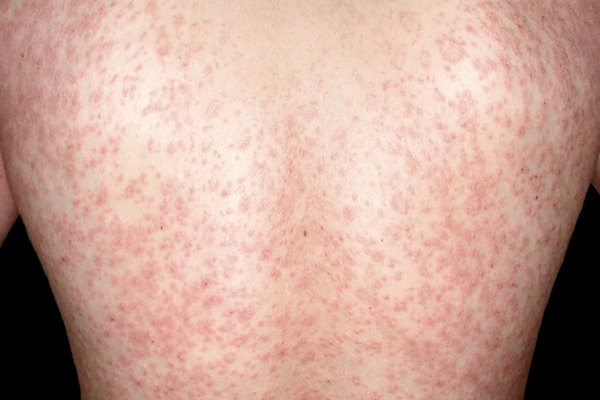 Picture of widespread red, scaly rash on the back of a person with white skin.