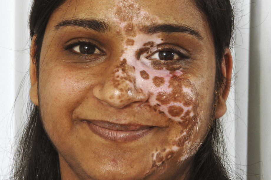 Vitiligo Nhs Uk