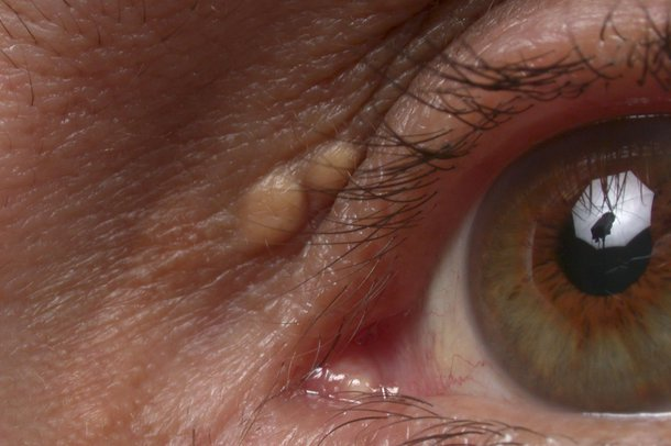 Picture of xanthelasma plaques