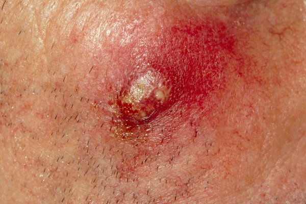 Picture of boil on the skin