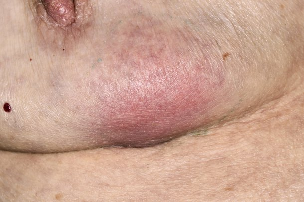 Think already breast abscess symptoms speaking