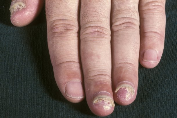 Picture of crumbly nails
