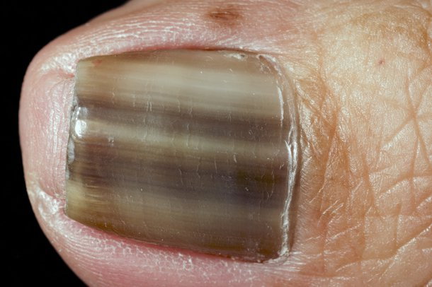 Picture of nail with dark stripes running down it