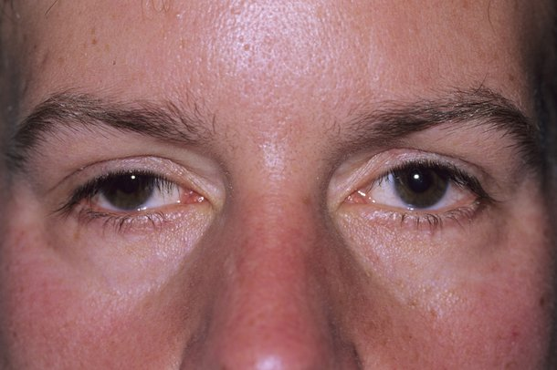 Picture of droopy eyelids