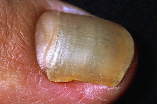 Picture of loose nail caused by fungal nail infection