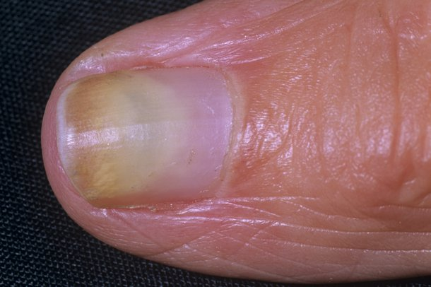 Picture of discoloured nail caused by fungal nail infection
