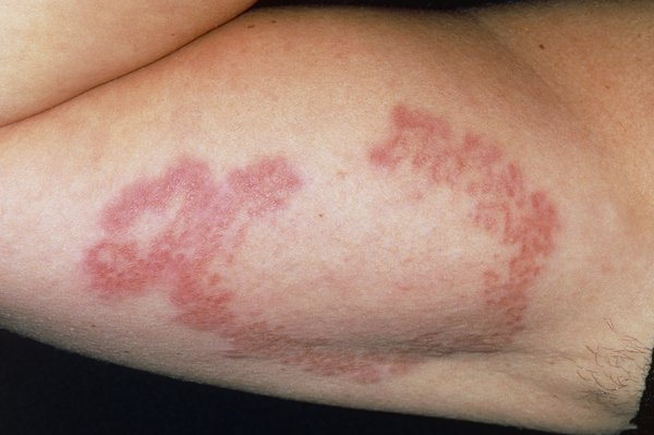 Picture of generalised granuloma annulare