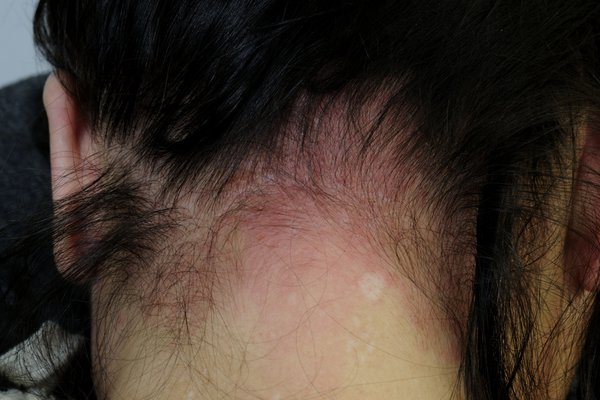 Red, irritated skin on the back of the neck and scalp from a reaction to hair dye