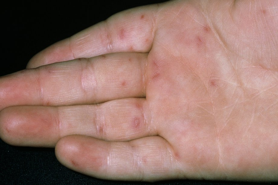 Picture of hand, foot and mouth rash