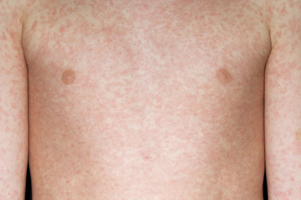 A measles rash appears around 2 to 4 days after initial symptoms