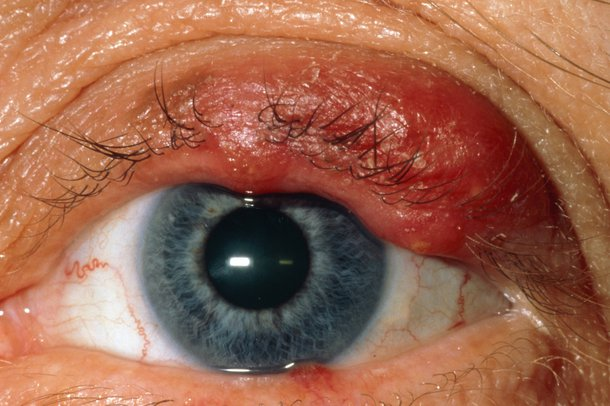 Picture of a meibomian cyst (chalazion)