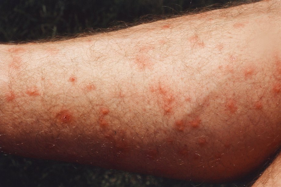 Insect bites and stings - Symptoms - NHS