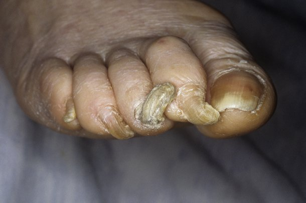 Picture of severely overgrown nails