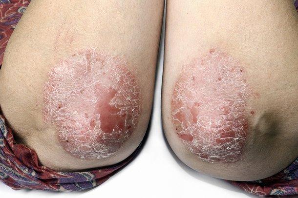 Picture of psoriasis rash
