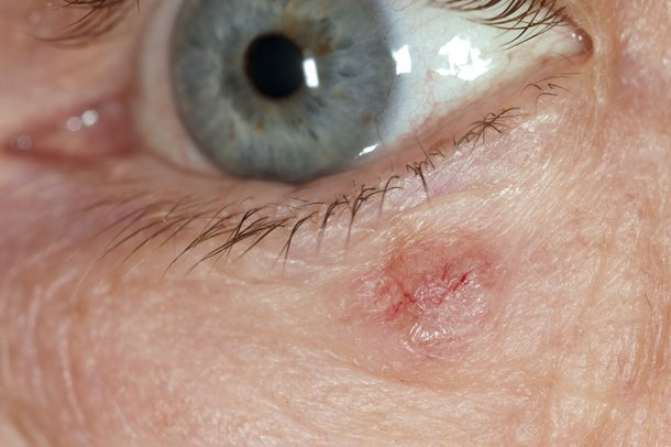 Picture of skin cancer near the eye