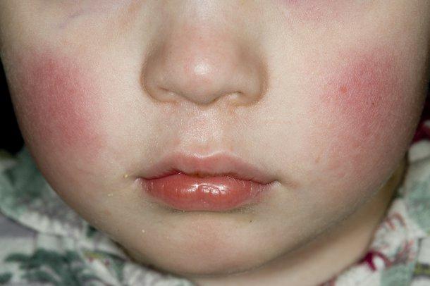 Picture of slapped cheek rash