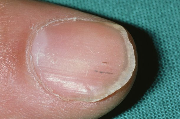 Picture of nail with dark streaks underneath