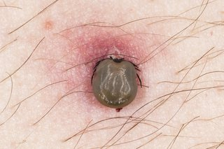 Image of tick feeding