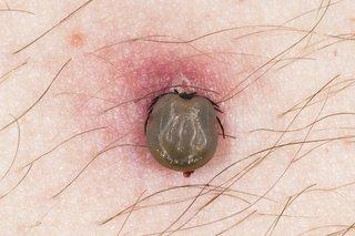 Tick biting skin