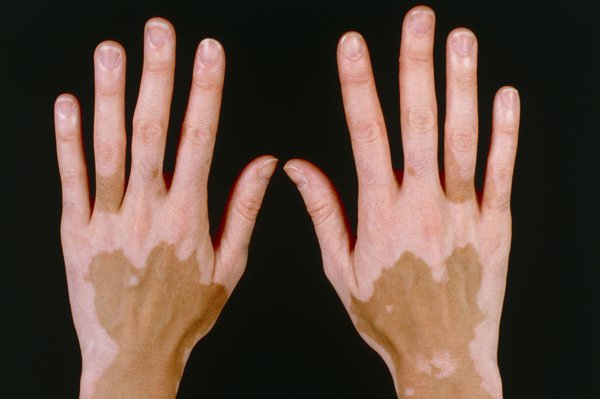 Picture of non-segmental vitiligo on brown skin